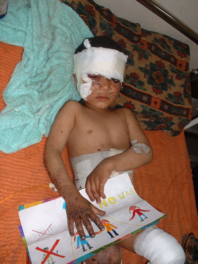 4 year old Iraqi boy with drawing injured in