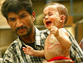 burned Iraqi baby