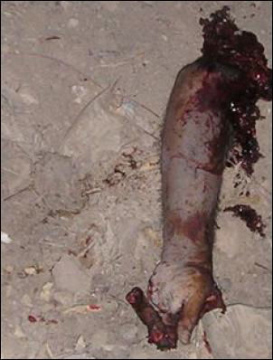 Iraqi severed arm typical of image US soldiers trade for porn