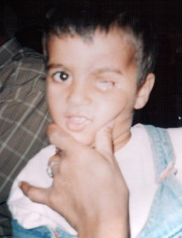Iraqi boy with one eye