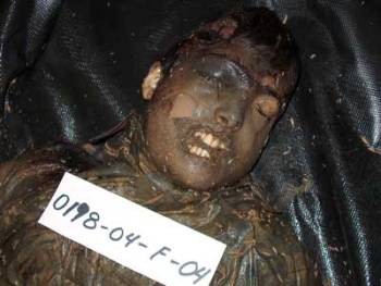 Falluja white phosphorus female victim