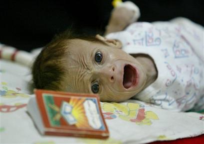 starved Iraqi baby