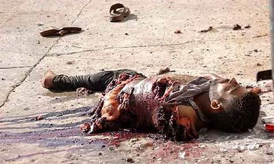 One side of a murdered Iraqi