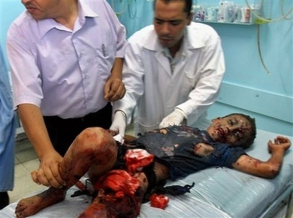 Palestinian boy wounded by Israeli soldiers