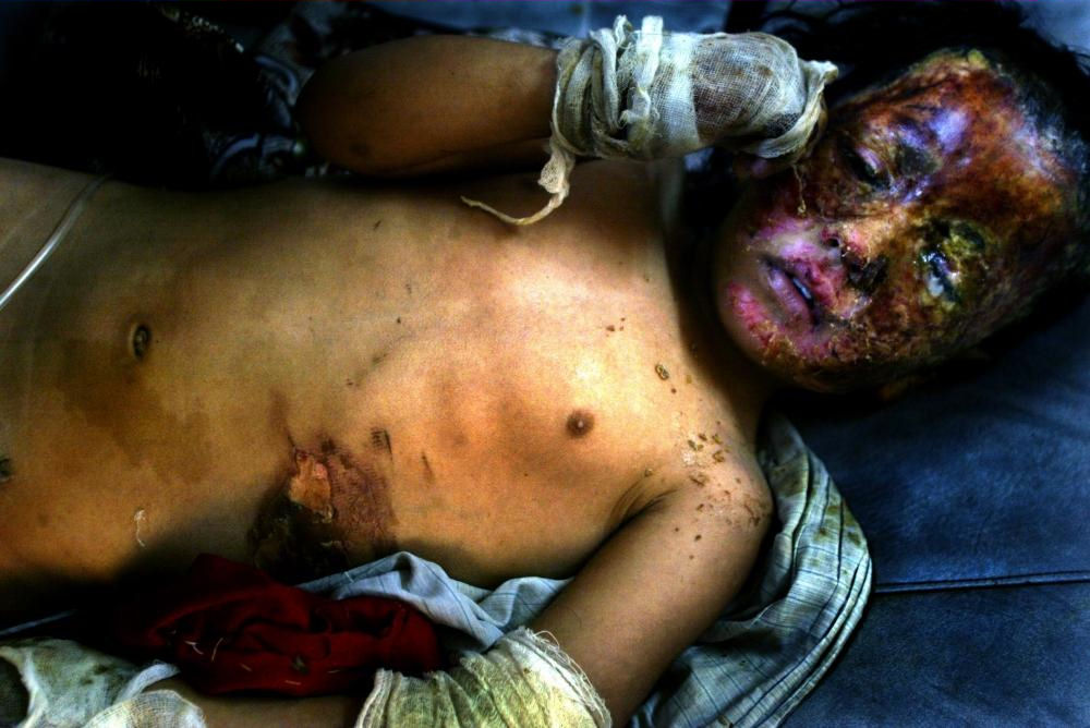 Iraqi child burned by Americans